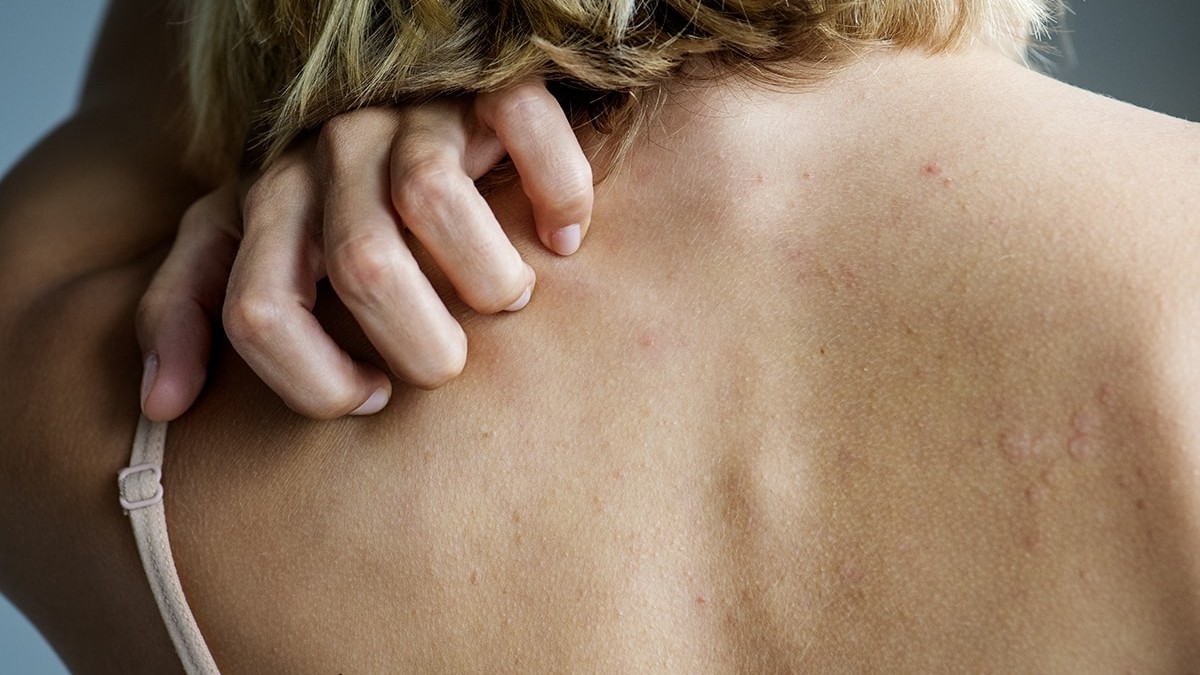 Woman scratching rash on back
