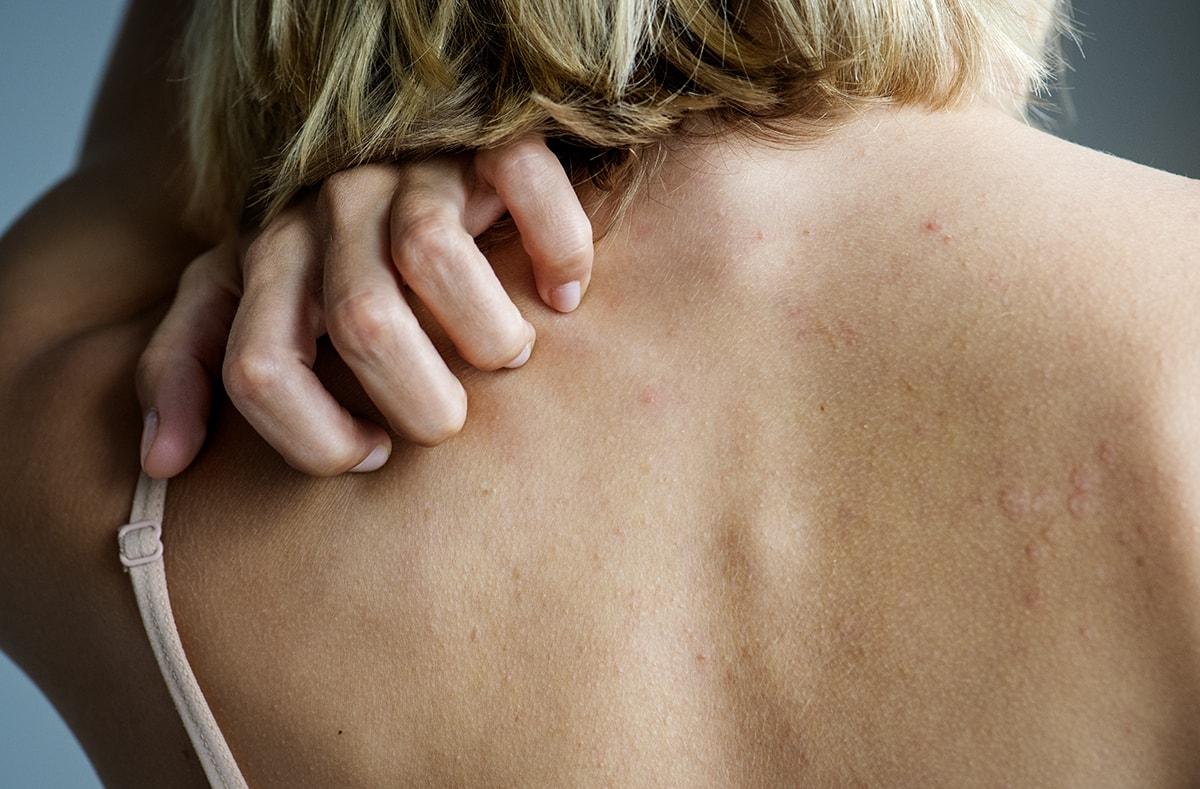 Woman scratching rash on back